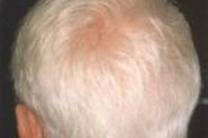 چه چیزی باعث سفیدی مو می شود؟