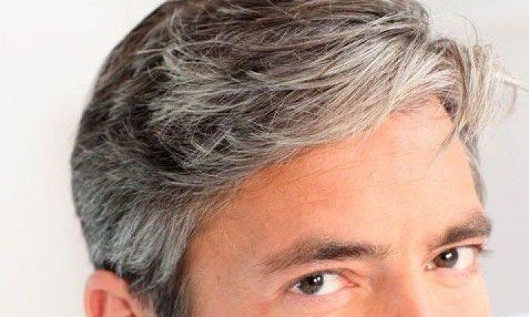 سفیدی زودرس مو