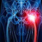 علل اصلی درد سیاتیک و راه های درمان درد سیاتیک
