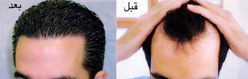 کاشت مو (1)