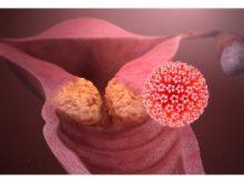 اسپاسم واژن چیست و چه علتی دارد؟