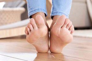 Heel-of-foot-crack