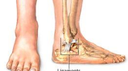 تعیین جنسیت با استفاده از استخوان قوزک پا