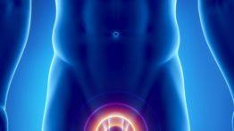 بالینیت یا التهاب پوست سر آلت تناسلی مردانه