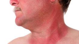 راههای درمانی خانگی آفتاب سوختگی