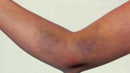 random-bruising02-1